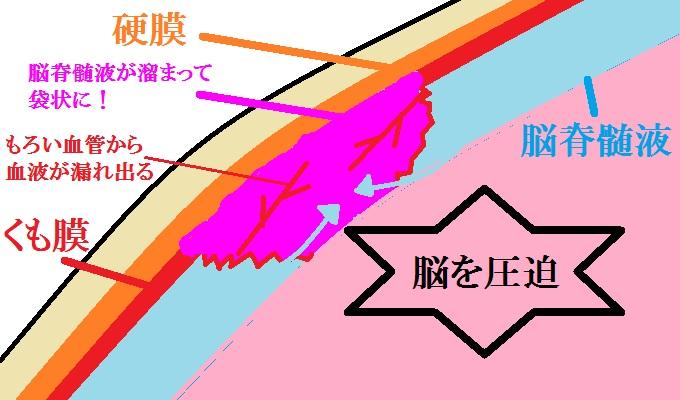 慢性硬膜下血腫の図